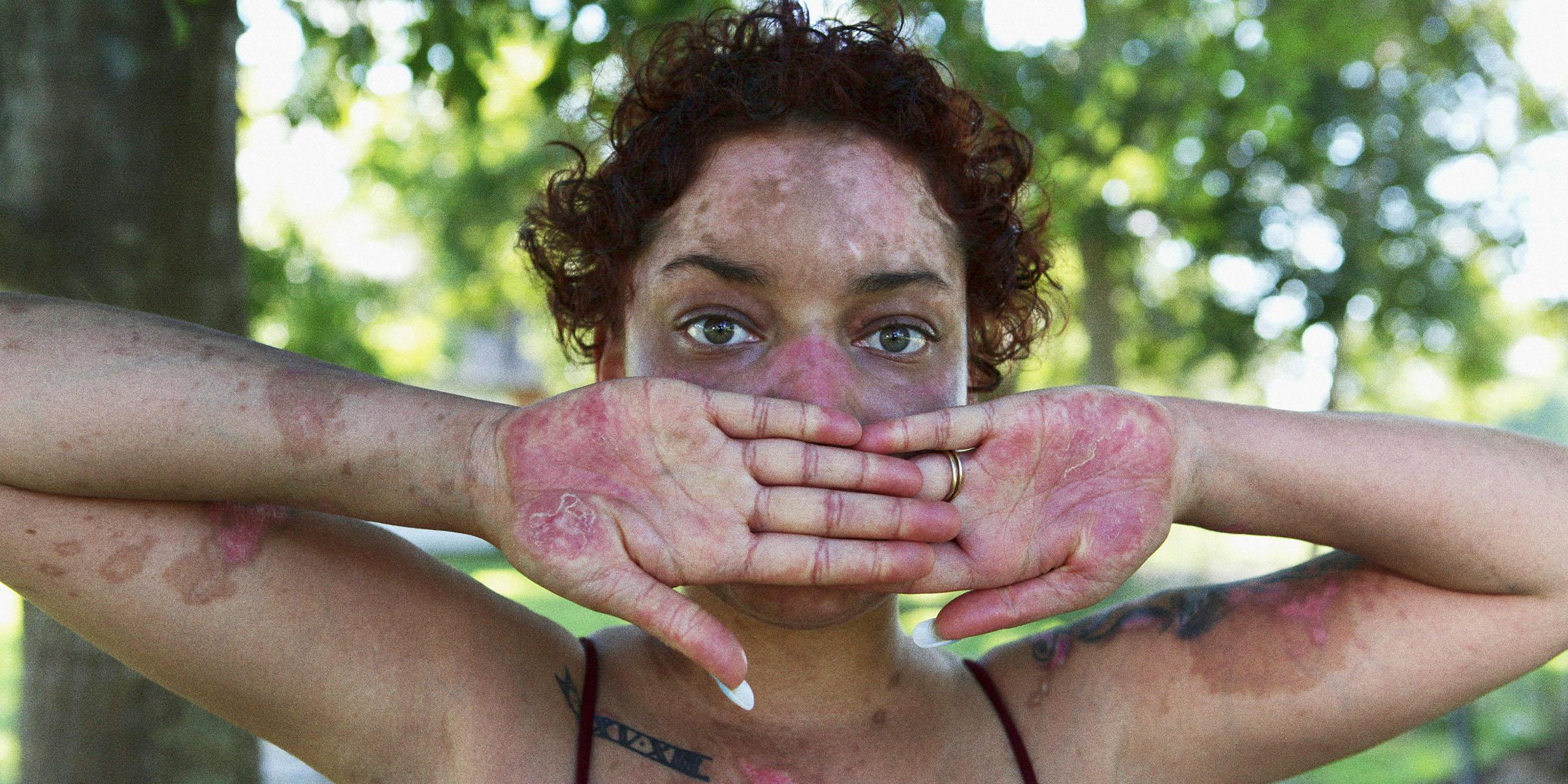 Crianças e jovens receberão ação sobre lúpus no Rio